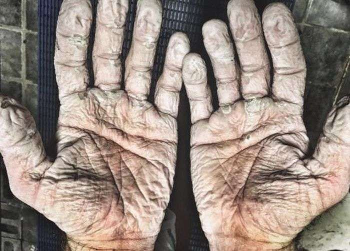 Руки весляра Алекса Грегорі після 1000-кілометрового полярного походу (2 фото)