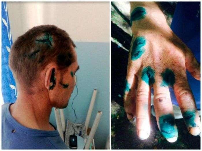 У Свердловській області грибник відбився від напав на нього ведмедя (4 фото)