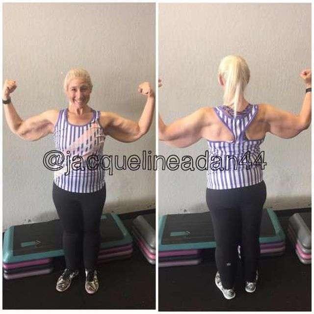 Дівчина, що втратила 160 кг, тепер бореться із зайвою шкірою (7 фото)