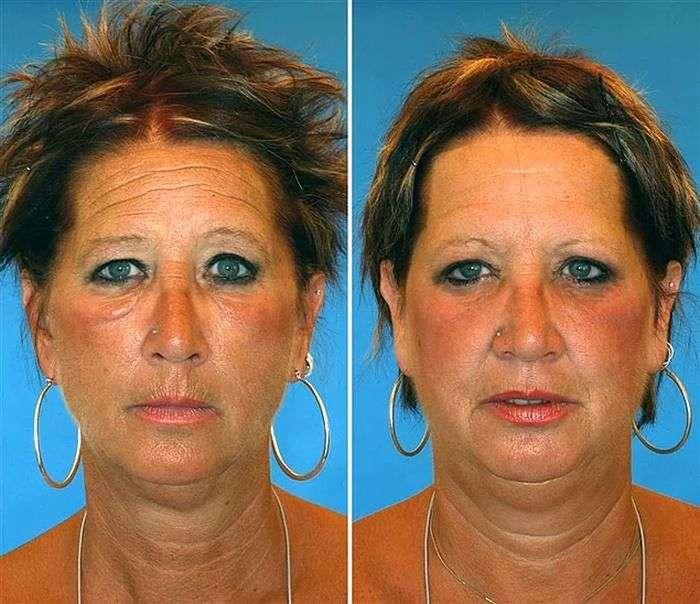 Особи близнюків, один з яких курить, а інший – ні (8 фото)