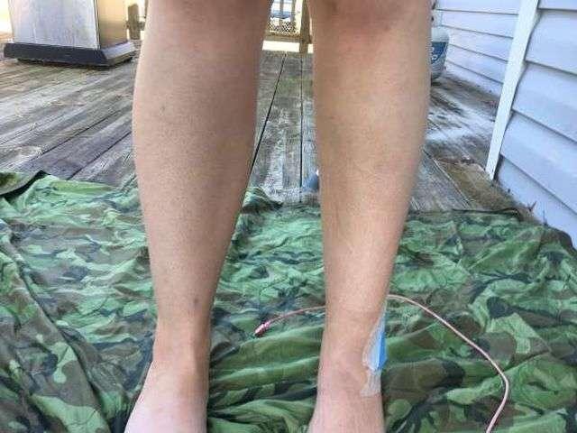 Що буде, якщо довго не використовувати свою ногу (2 фото)
