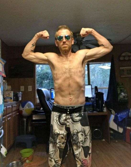 Американець схуд на 160 кг, щоб не померти (10 фото)