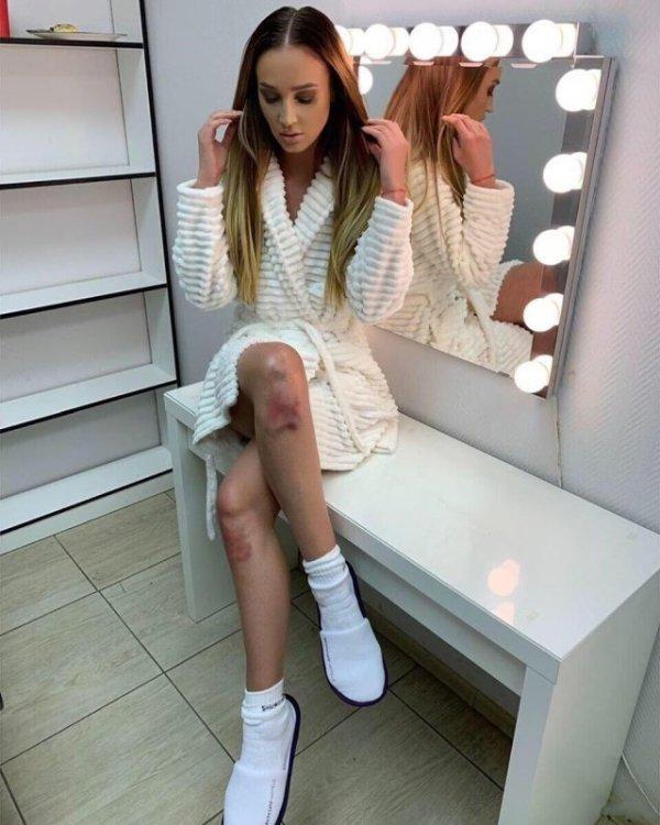 Трудный путь к успеху: Ольга Бузова опубликовала фото с разбитыми коленями Всячина